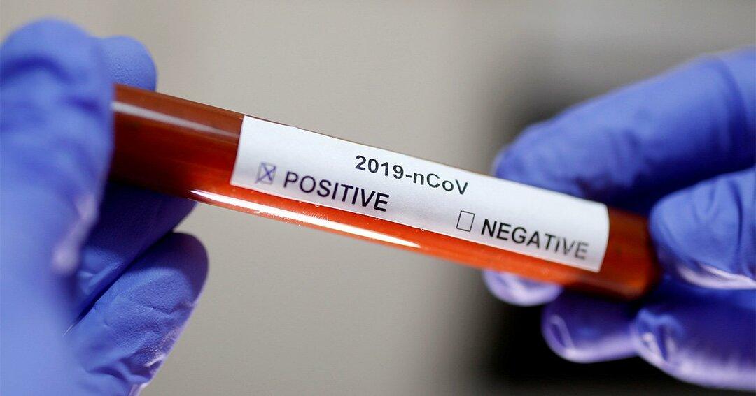新型ウイルス治療薬、投資家には危険な賭け