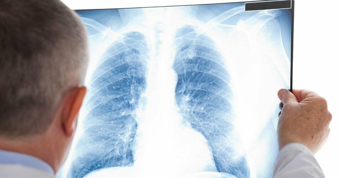 医者が「レントゲンバス」での肺がん検診を断る理由
