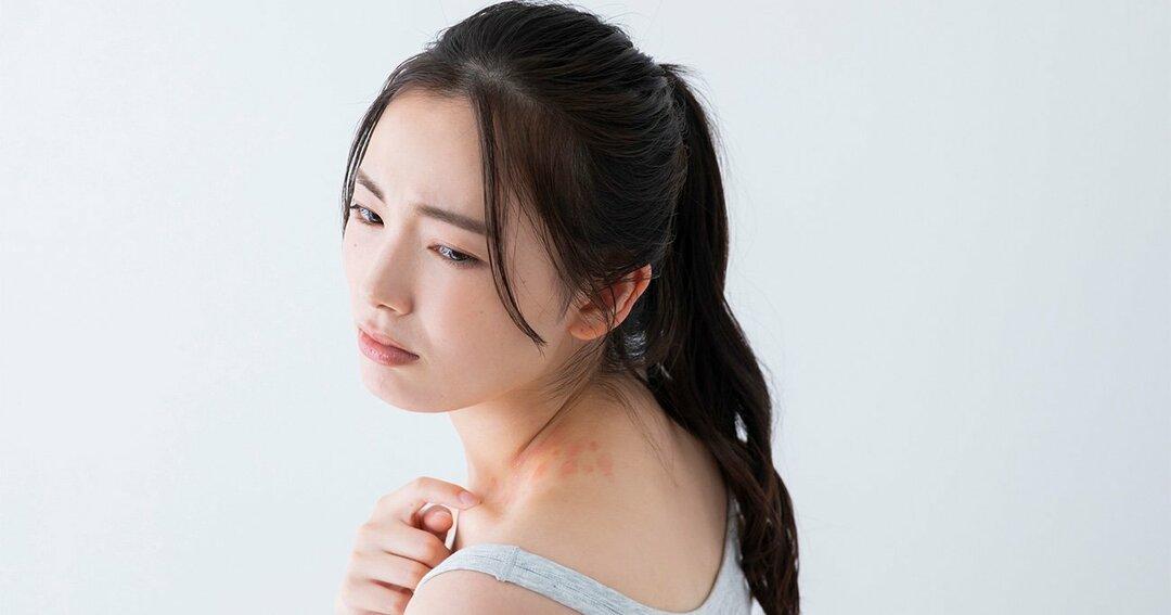関節リウマチ治療薬・ウパダシチニブが、アトピー性皮膚炎にも有効か