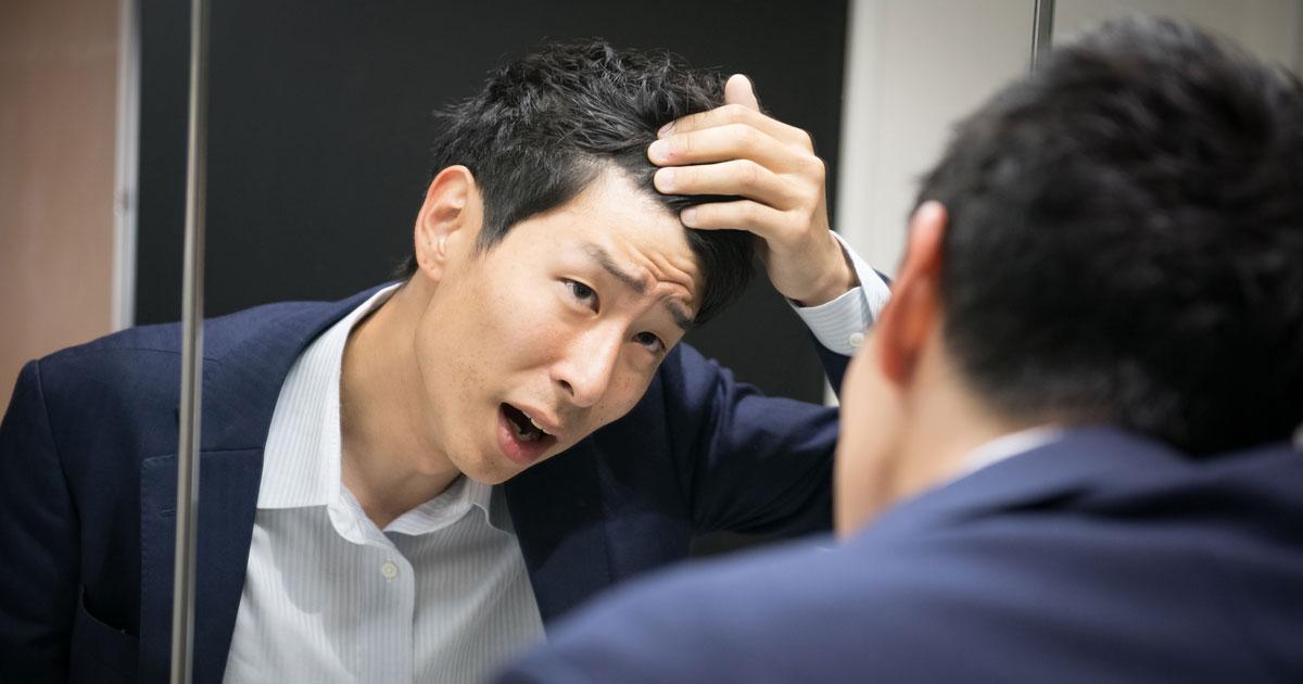 実際は薄毛ではないのに「自分はハゲ」と思う男性が多い理由