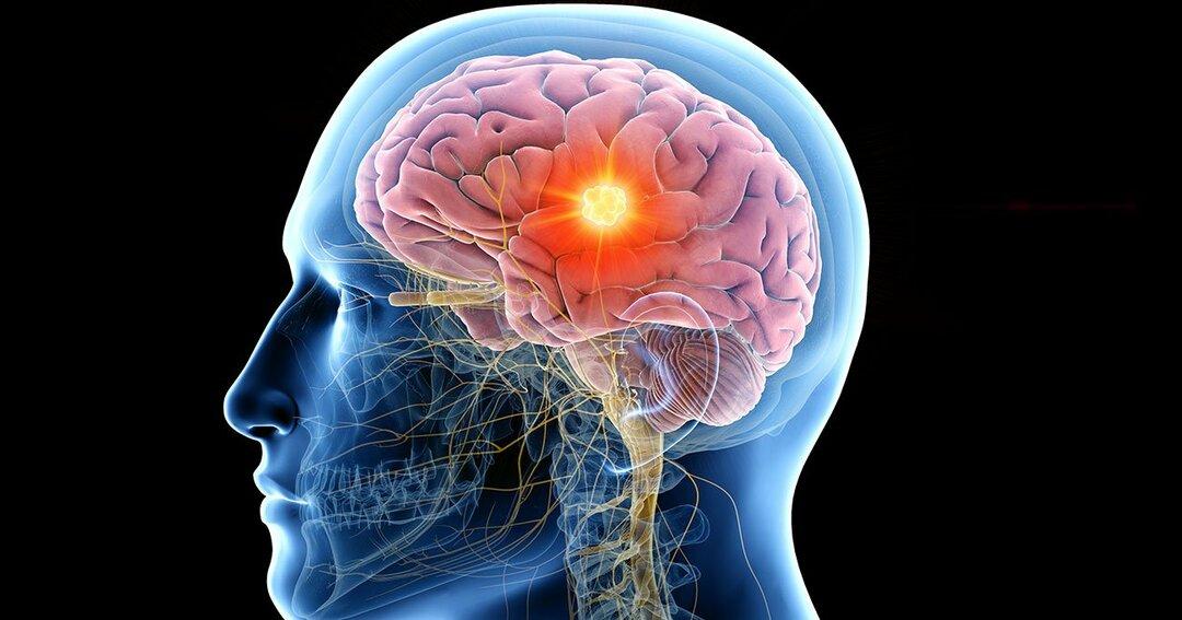 脳の働きを高める「グルコース」の効果的な補給方法