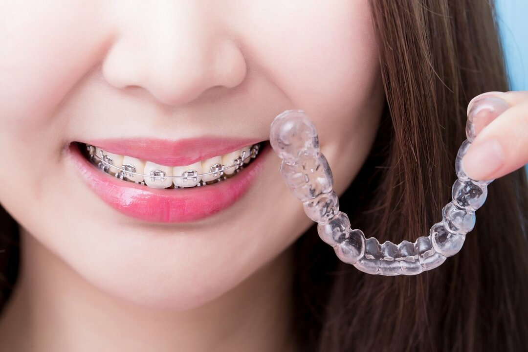 ワイヤー式歯科矯正に代わる、マウスピース矯正とは?