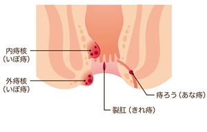 「痔主」3人に1人なのに半数が治療しない日本おしり事情