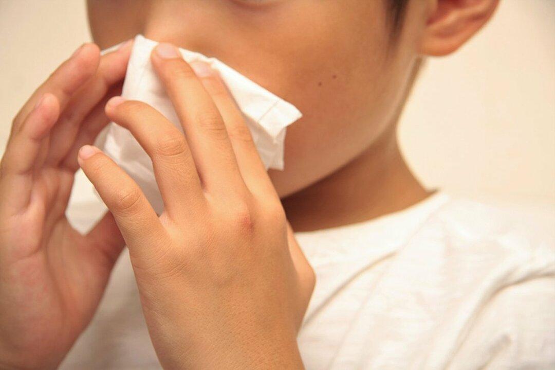米国の鼻血診療ガイドライン、ティッシュを詰めるより圧迫止血が先