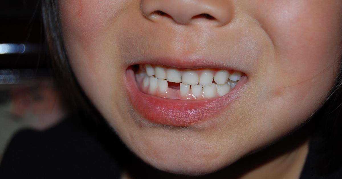 わが子の「乳歯」を捨ててはいけない!?その意外な理由とは