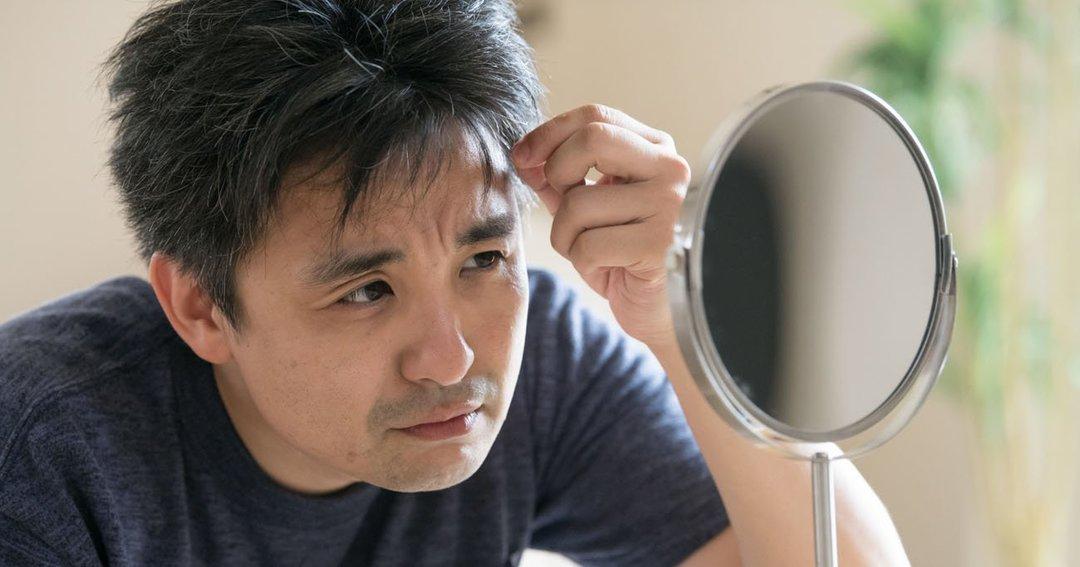薄毛を気にする男性がオンライン会議で増加、見た目を良くするお手軽対策